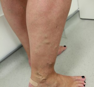 Varicose vein treatment leg before evla