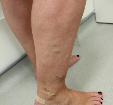 Varicose vein treatment leg before evla