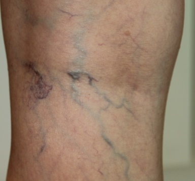 Thread vein treatment before