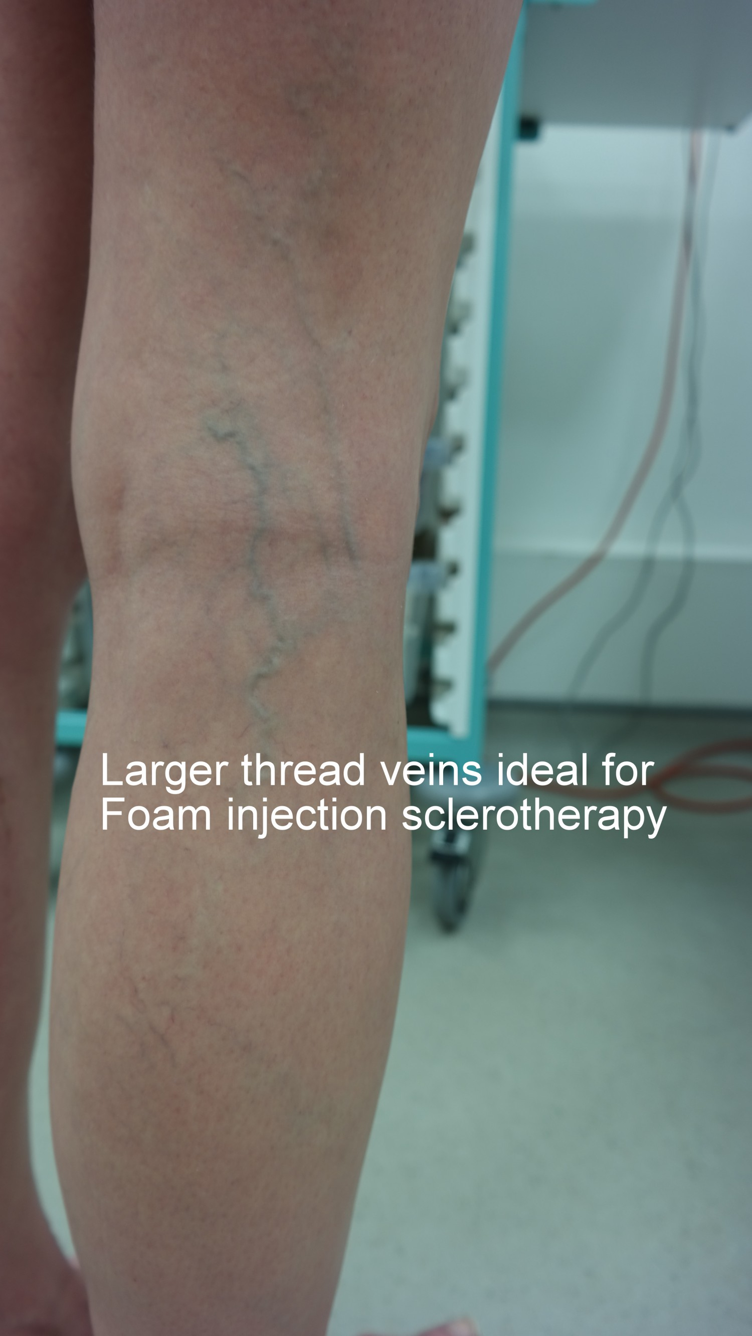 Foam sclerotherapy blue veins