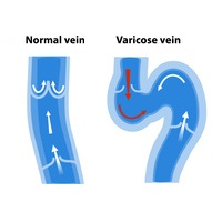Varicose Veins Diagram