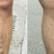 before after laser varicose veins