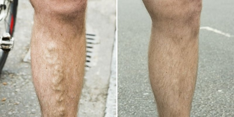 before after laser varicose veins