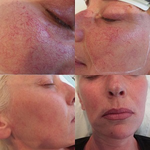 laser thread vein removal results