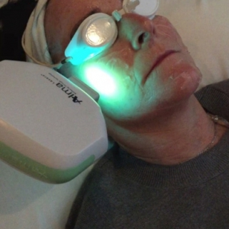laser thread vein treatment