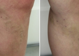 london varicose vein treatment before and after