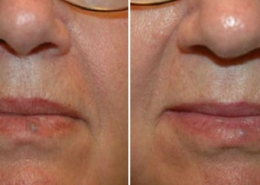 results facial laser thread vein removal harmony
