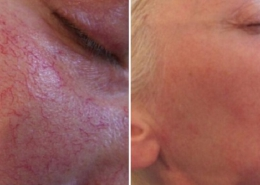 Laser thread vein treatment results at Cosmedics' London Vein Treatment Centre