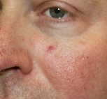 thread vein on cheek