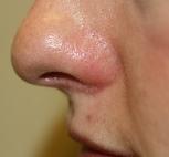 thread vein top lip