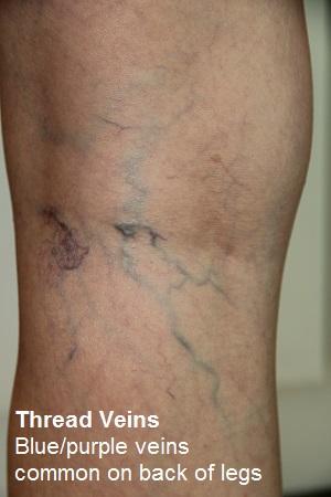 thread veins back legs