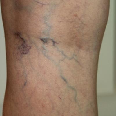 thread vein legs