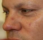 thread veins on nose