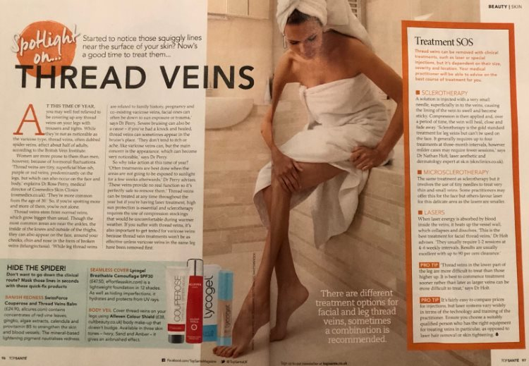 top sante thread veins treatment