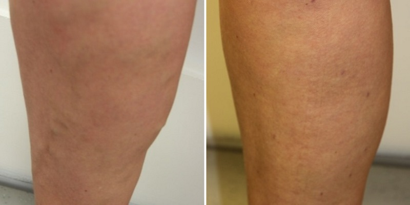 varicose-vein-leg-before-and-after