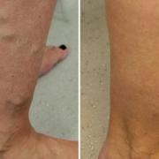 varicose veins ankles treatment