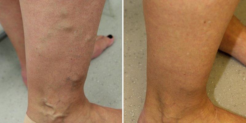 varicose veins ankles treatment