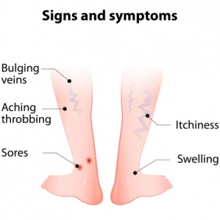 Diagram - Symptoms of Varicose Veins