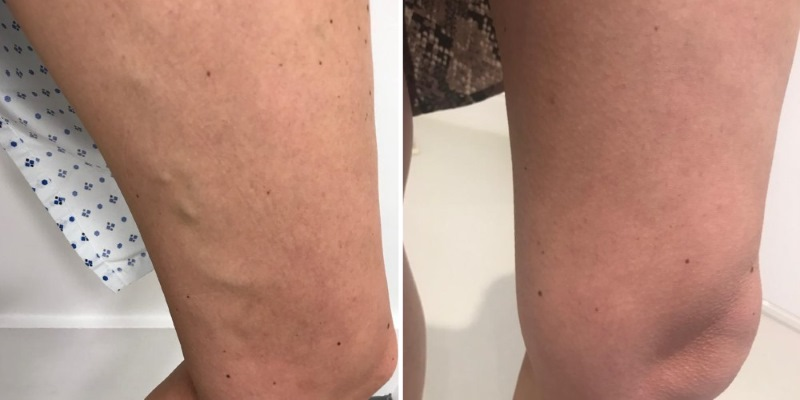 varicose veins thighs before and after