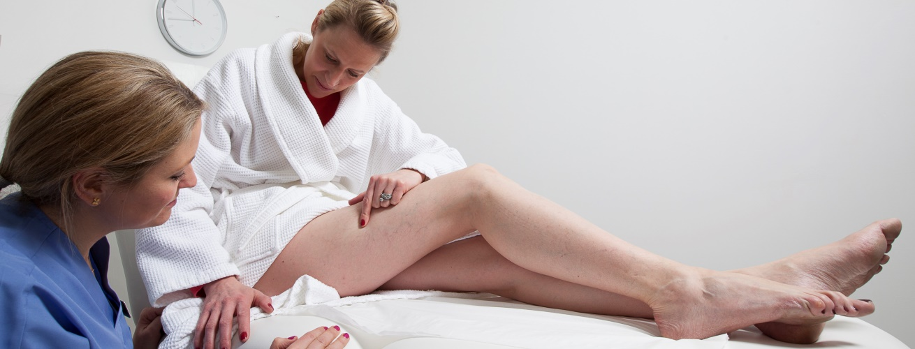 varicose-veins-treatment
